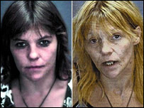 Drug addict before and after