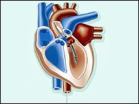 Heart pump in situ
