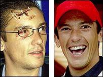 Frankie Dettori pictured after his plane crash in 2000, and in happier times in 2004