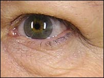 Skin around eye before treatment