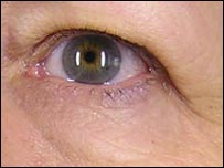 Skin around eye after treatment