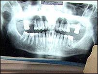 Image of a dental x-ray