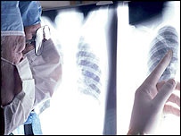 Doctors peruse chest X-ray