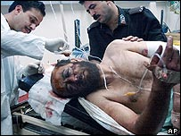Palestinian farmer Mustafa Khatatbeh treated after being attacked by Jewish settlers near Nablus, 21 September 2004