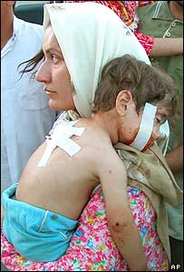An Iraqi woman comforts her injured child at the hospital in Samarra after a fire-fight