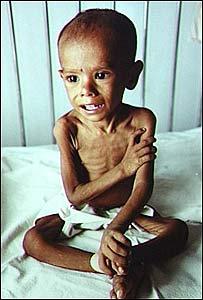 Niño desnutrido en Bangladesh