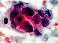 Image of breast cancer cells