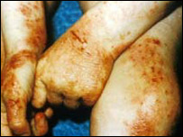 Image of eczema