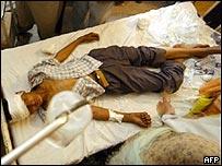 Blast victim in hospital