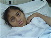 Uzma, Pakistani kidney recipient