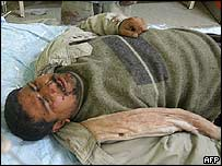 A injured Iraqi in Baghdad's hospital
