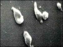 M. genitalium bacteria