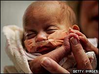 Baby Rumaisa, 21 December 2004
