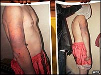 Photographs of alleged Afghan torture victims