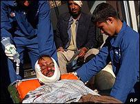 Men wounded in Sciri attack arrive at Ibn al-Nafees hospital in Baghdad