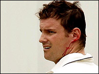 Andrew Strauss bleeds after being hit on the helmet by Brett Lee