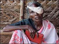 Mujer herida en la India.