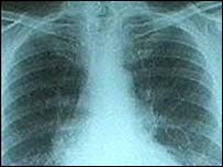 X-ray image of lungs