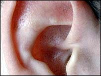 Image of an ear