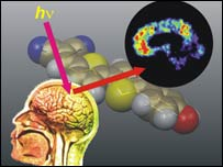 Image of how the dye shows brain lesions