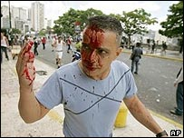 An unidentified supporter of President Hugo Chavez is covered in blood after being hit by a stone during the clashes in Caracas