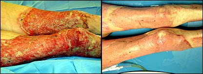 Elderly patient's legs before and after treatment
