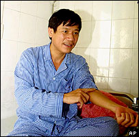 Nguyen Thanh Hung, in hospital, 26/01/05