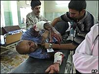 Injured victim from Baghdad blast 14 September