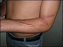 Scars on Shawq Hawsun Mawla