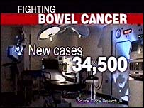 Bowel cancer statistics
