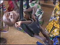 An undernourished child being weighed in a Niger feeding centre