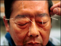 A patient has a few needles placed in his face