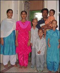 Progeria family