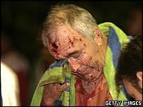 Bali blast victim