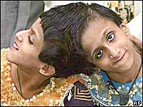 Indian conjoined twins Saba, left, and Farah in  Delhi on their arrival on Sept. 10