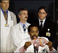 Dr Benjamin Carson (seated, in a file picture) is in Delhi to examine the twins