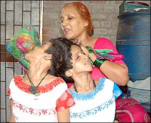 Conjoined Indian twins, Saba, left and Farah with mother, Rabiya Khatoon, at home in Patna, Bihar state (Picture by Prashant Ravi)