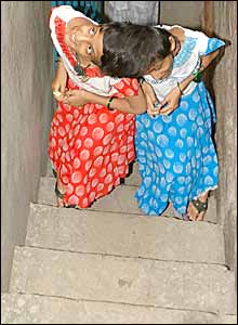 Conjoined Indian twins, Saba, left and Farah climbing stairs at home in Patna (Picture by Prashant Ravi)