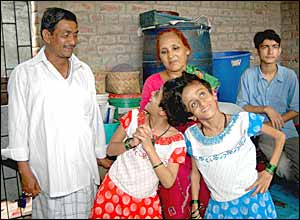 Conjoined Indian twins, Saba, left and Farah with parents in Patna (Picture by Prashant Ravi)