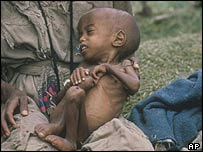 Child victim of the Ethiopian famine of 1984