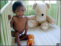 Malnourished child in hospital in Dourados, Mato Grosso do Sul