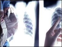 Image of chest x-ray