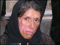 Gulbanoo, who was injured during the chemical attacks