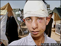 Injured boy in front of tents in Manshera