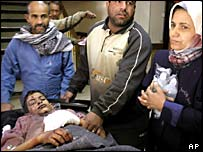 A child lies injured after a bomb exploded in Dora, south of Baghdad