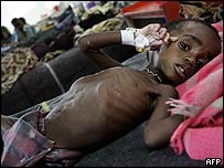 A Malawian malnourished child lies in hospital in Blantyre