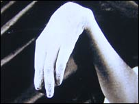 Image of lead poisoning wrist drop