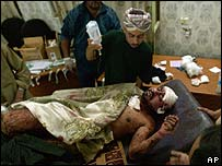 A victim of the blasts in Howaider, Iraq, is treated in hospital