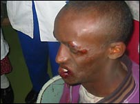 Wounded Ethiopian protester