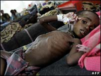 Malnourished child in Malawi